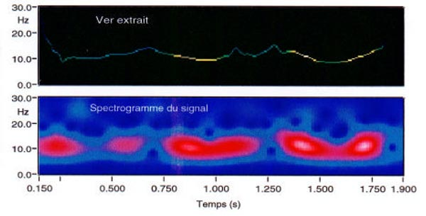 Figure 26. Time-frequency worm versus spectrogram of a sinusoid with varying frequency and amplitude.